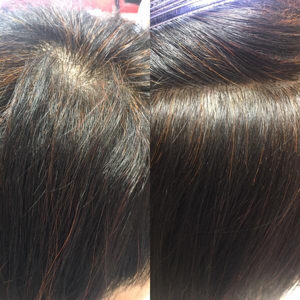 髪 1 ヶ月 何 センチ